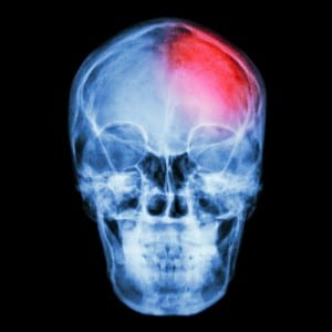 Head or Brain Injury at Work